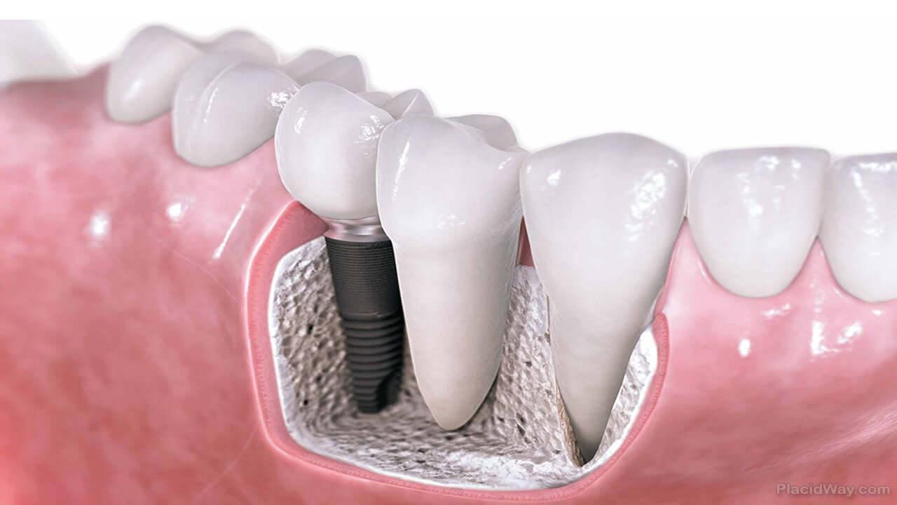 Imagen: sección de mandíbula con implante dental